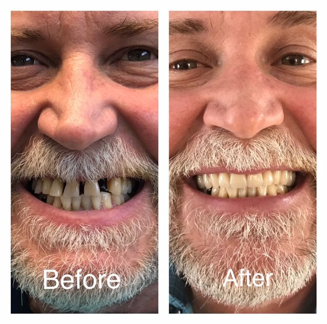 dentures, dental implants, denture, dentalimplant, implant, partial denture, full denture, replacing teeth, teeth replacement, vandor denture centre, winnipeg, manitoba, canada, award winning denturist, denturist, dental, teeth, teeth options,